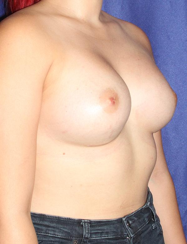 breastaugafter2.jpg