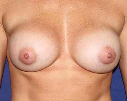 photo of female torso after breast augmentation