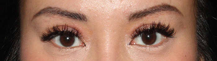 photo of eyes after asian eyelid surgery frontal