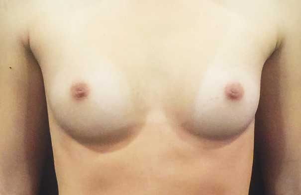 photo of female before breast augmentation