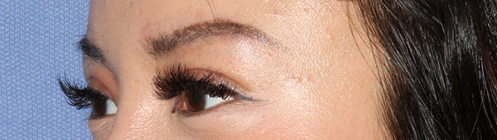 asian-eyelid-after.jpg