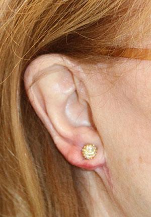 earlobeafter.jpg