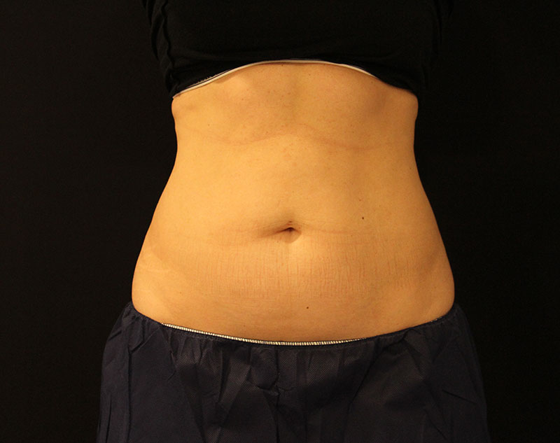 photo of front torso before coolsculpting