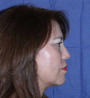 threadlift after side view
