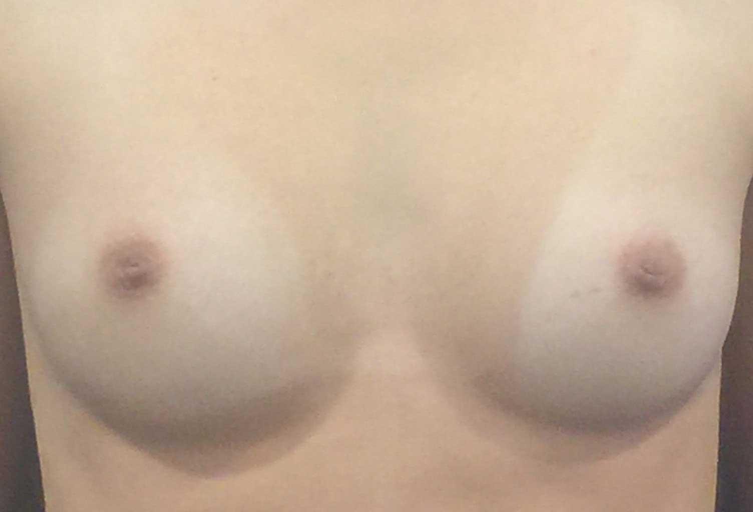 breastaugfront.jpg