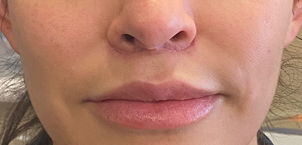 after lip lift frontal view