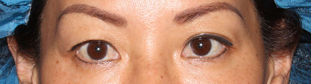 Eyelids Before Blepharoplasty