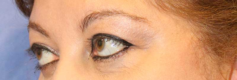 Eyelid Surgery After Side View