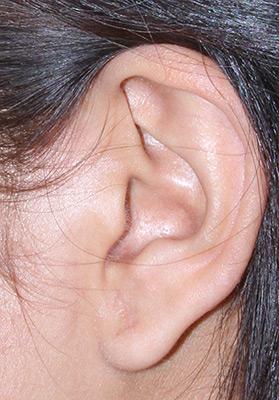 ear-after.jpg