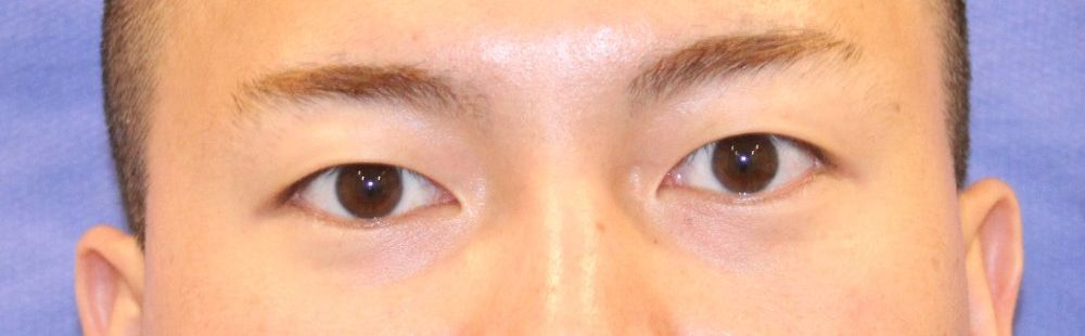After Eyelid Photo Frontal