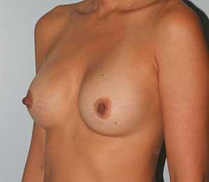breast-aug-bfore.jpg