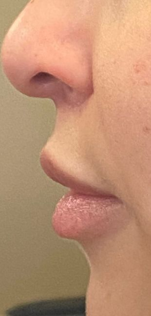 after lip lift side view