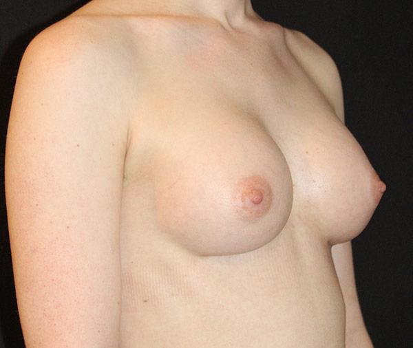 breastaugustafter.jpg