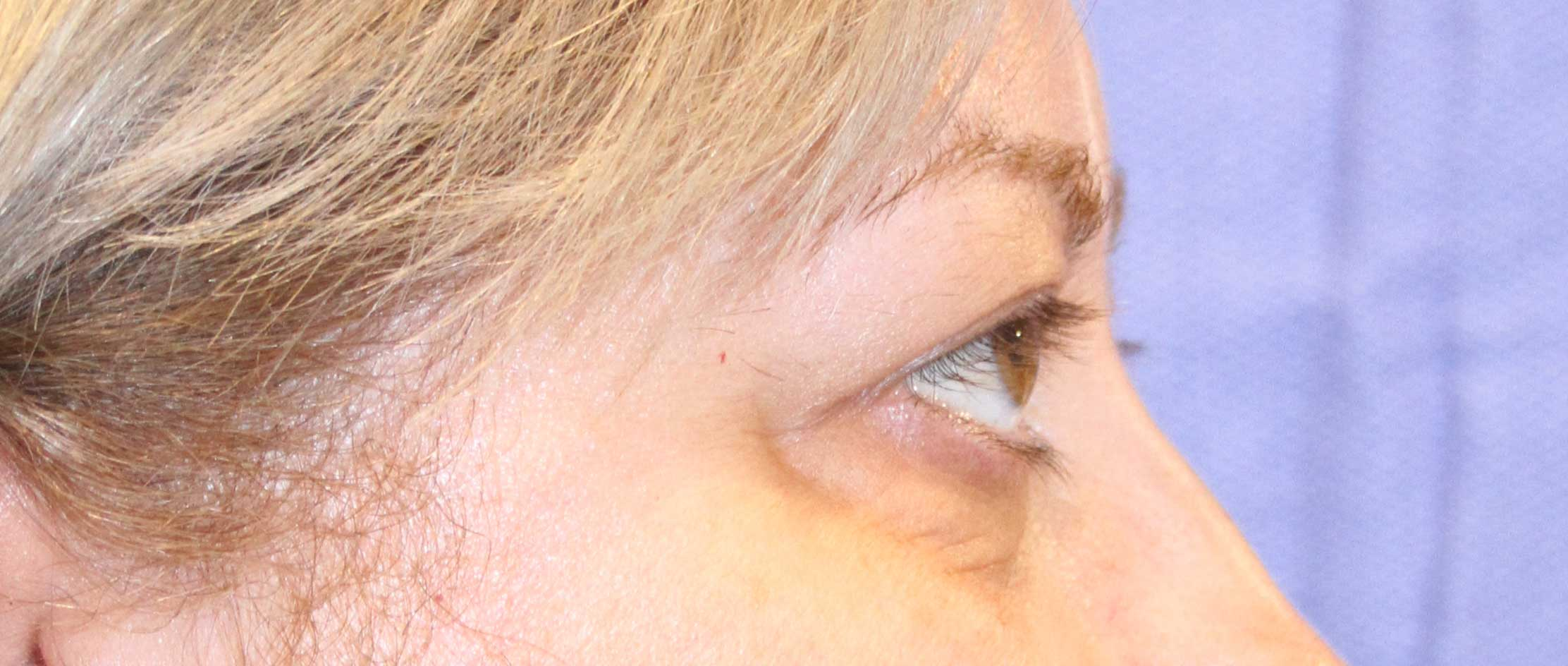 Lower Eyelid Before Surgery