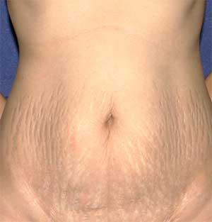 photo of female torso before tummy tuck