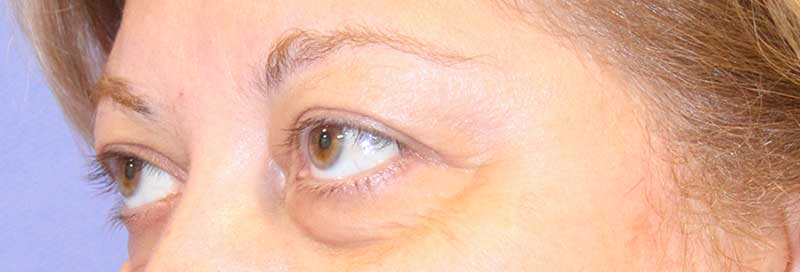 Eyelid Surgery Before Side View