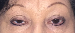close up woman's eyes before eyelid surgery