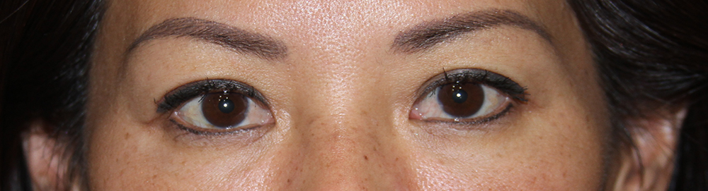 Eyelids After Blepharoplasty