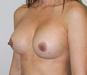 breast-aug-after.jpg