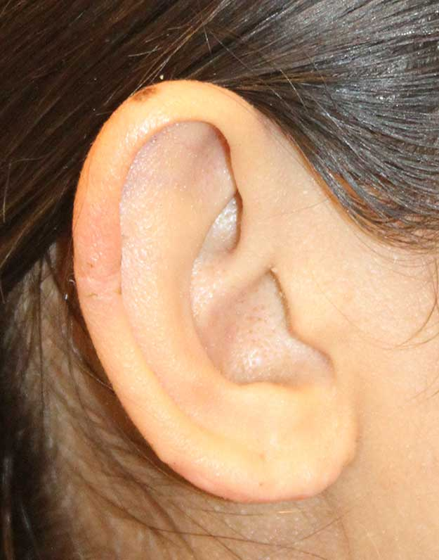 Earlobe Side View After