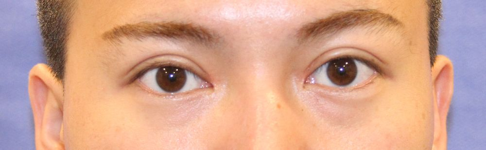 Eyelid Before of Young Man