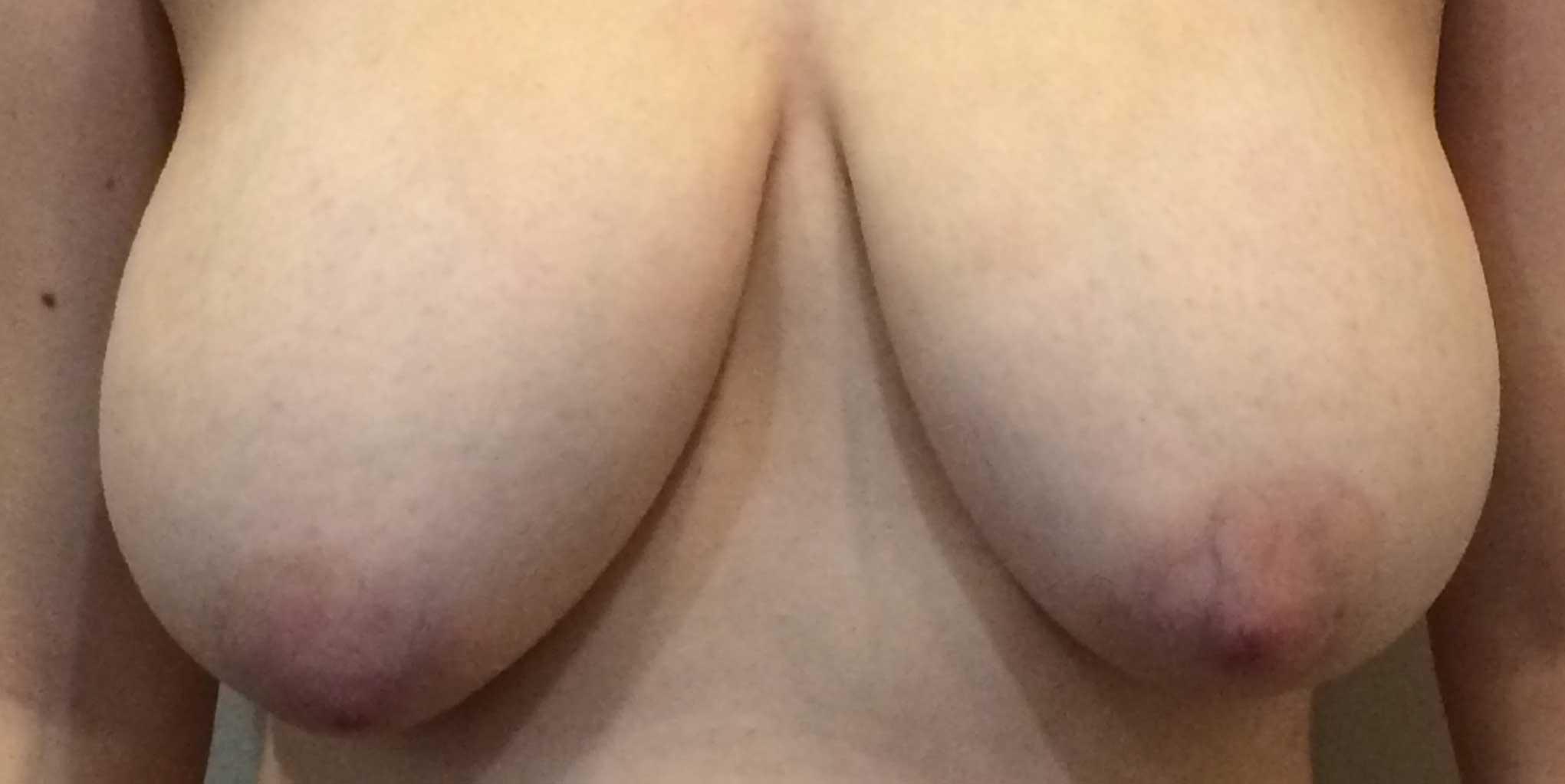 breastliftbefore.jpg