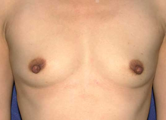 photo of breasts before breast augmentation