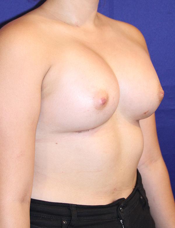 breastaugbefore2.jpg