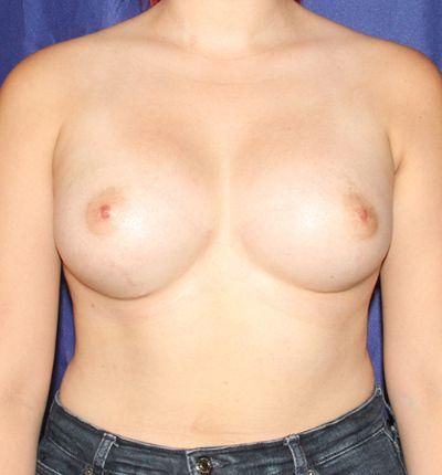 breastaugafter1.jpg