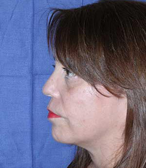 Mom After Left Side View
