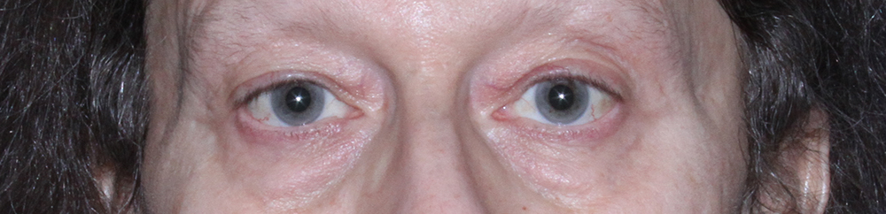 Eyelids Before Blepharoplasty - Front