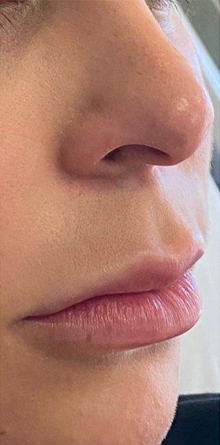 before lip lift side view