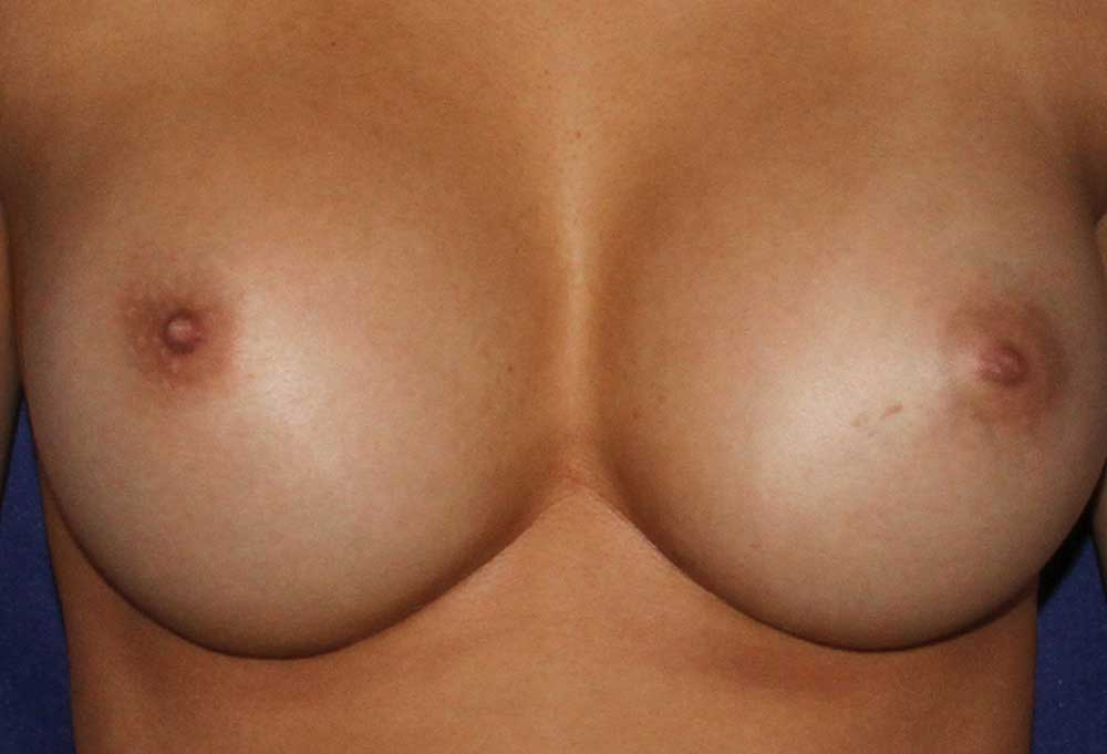 photo of breasts zoomed in after breast augmentation