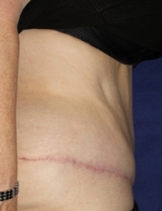 Side view of body after liposuction
