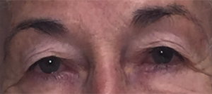 close up of older woman before eyelid surgery