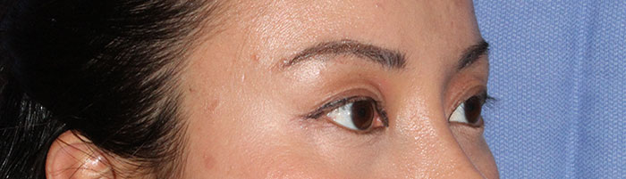 photo of eyes before asian eyelid surgery