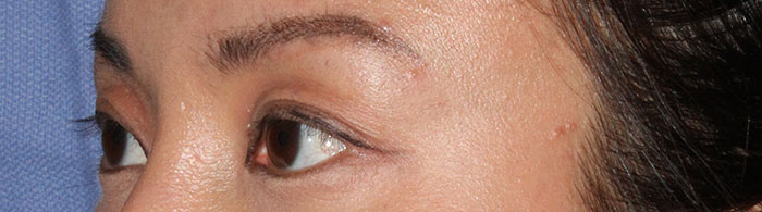 asian-eyelid-before.jpg