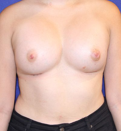 breastaugbefore1.jpg