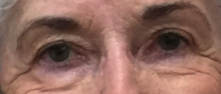 closeup of older woman's eyelids after procedure