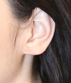 ear1before.jpg
