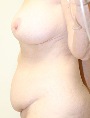 side view of 57 year old before tummy tuck