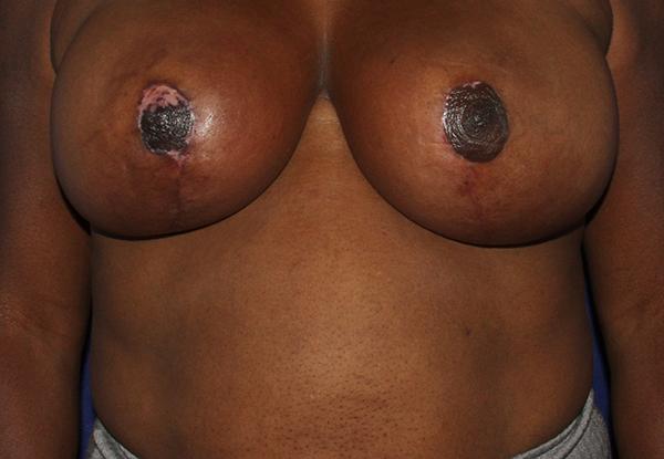 breastliftafter.jpg