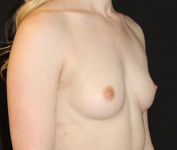 breastaugustbefore.jpg